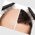 کاشت مو و انواع روشهای کاشت مو و هزینه ها