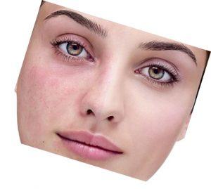 لک صورت و انواع روش های درمان آن