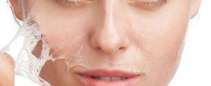 جوانسازی پوست به روش لایه برداری
