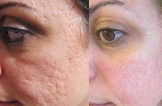 جوانسازی پوست به روش لیفتینگ