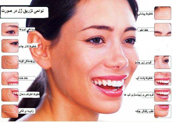 محل های تزریق ژل در بدن