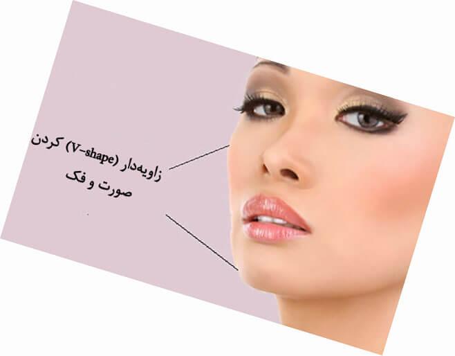 زاویهدار کردن فک و صورت