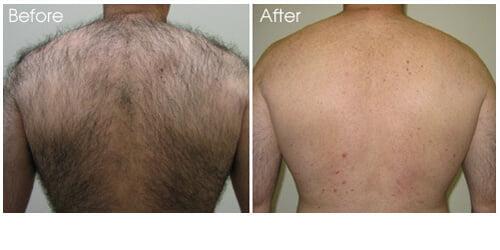 روش لیزر موهای زائد بدن