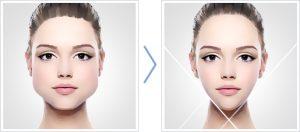 زاویه دار کردن فک و صورت