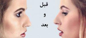 زیبایی بینی بدون جراحی بینی