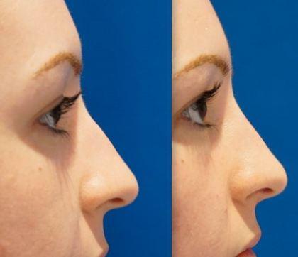 زیبایی بینی بدون جراحی به چه صورت می باشد؟