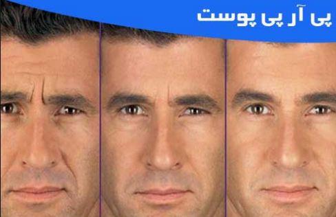 پی آر پی پوست