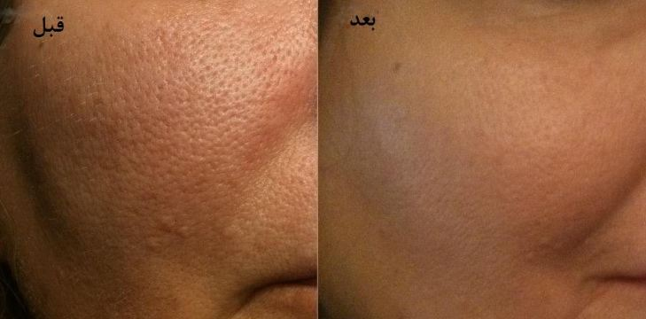 درمان منافذ باز پوست صورت چگونه است؟