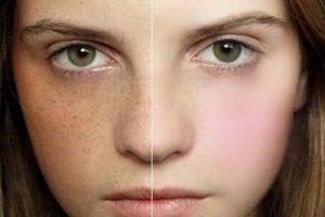 درمان کک و مک با لیزر